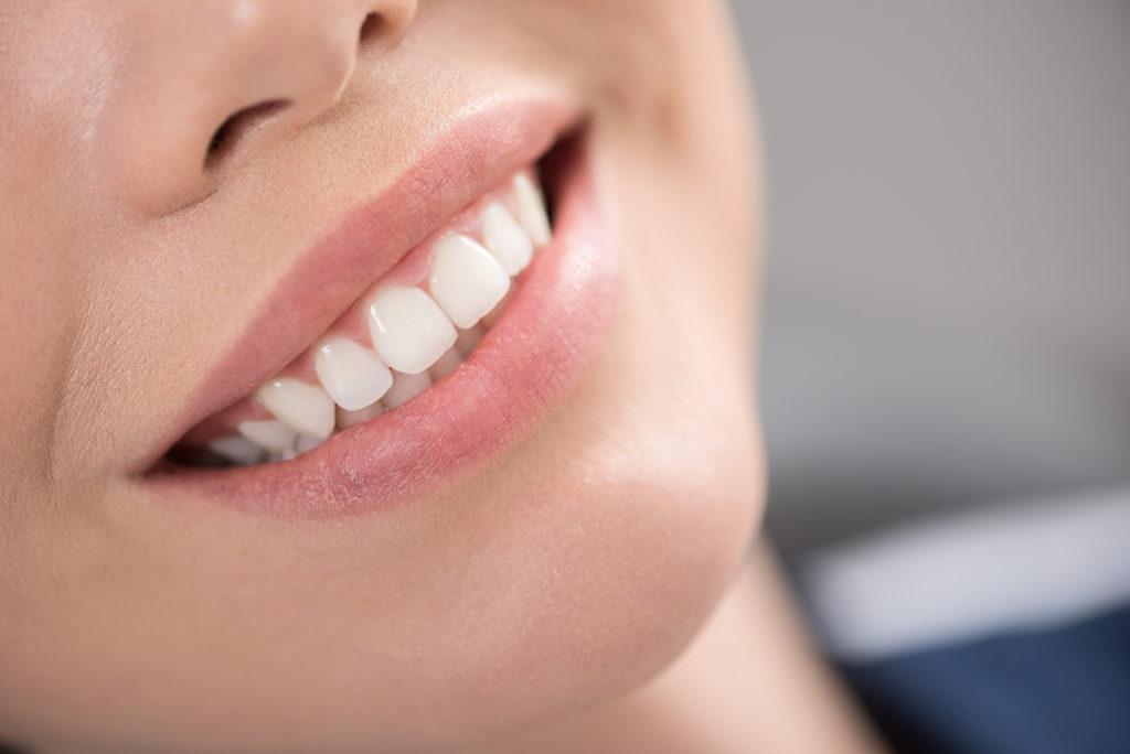 Millpond Dental Implants